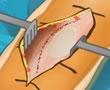 Diz Ameliyat Uygulaması