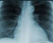 Röntgen Çek